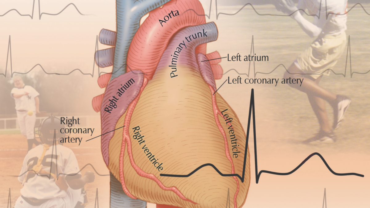 Atrial Fibrillation in Athletes