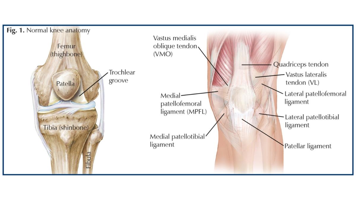Traumatic Patellar Dislocation